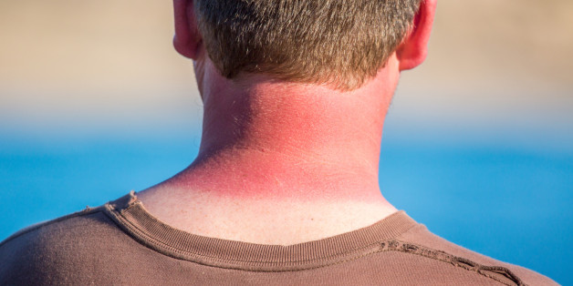 The Truth About Melanoma and Skin Cancer